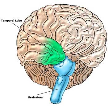 20060525094144-brainstemtt.jpg